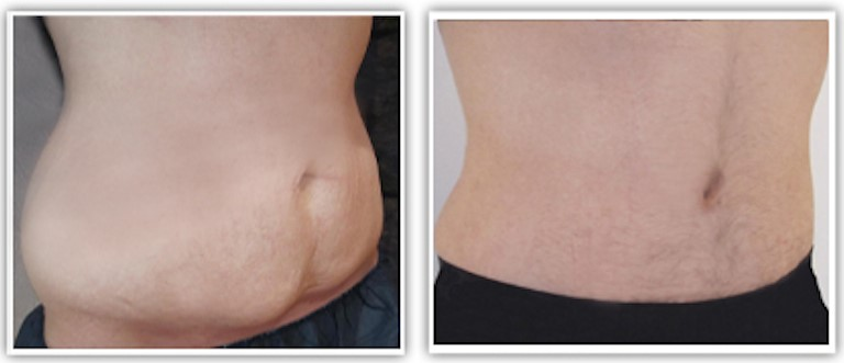abdominoplastie avant apres 3