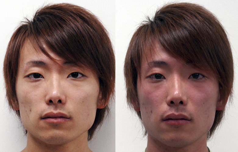 asian glow asian flush syndrome alcool asiatique