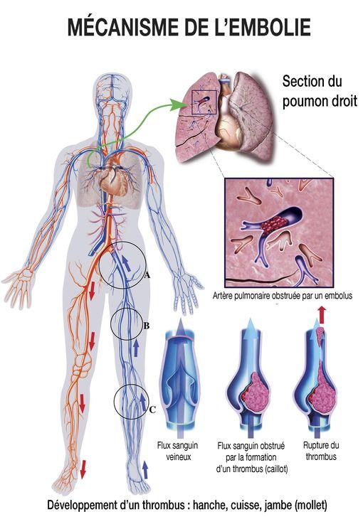 Mécanisme de développement d'un thrombus : hanche, cuisse, jambe (mollet)