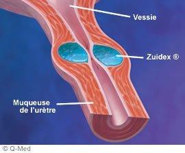 Zuidex Incontinence urinaire