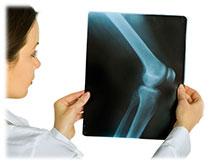 Opération prothèse genou technique