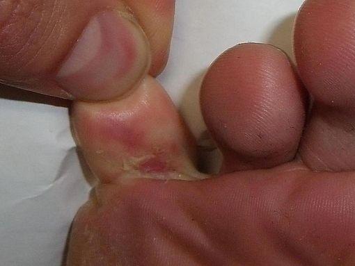 symptômes pied d'athlète